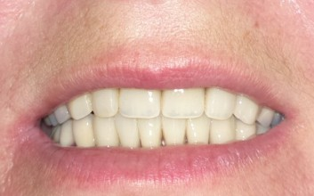 Lower and upper jaw treatment in immediat loading